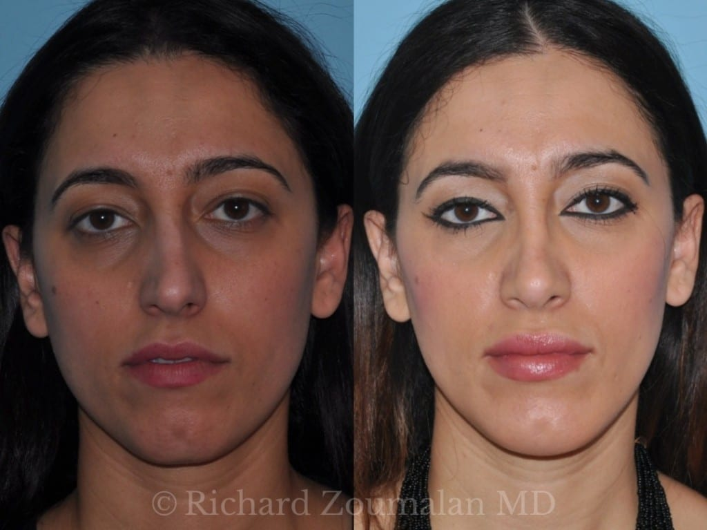 beverly-hills-female-rhinoplasty-01