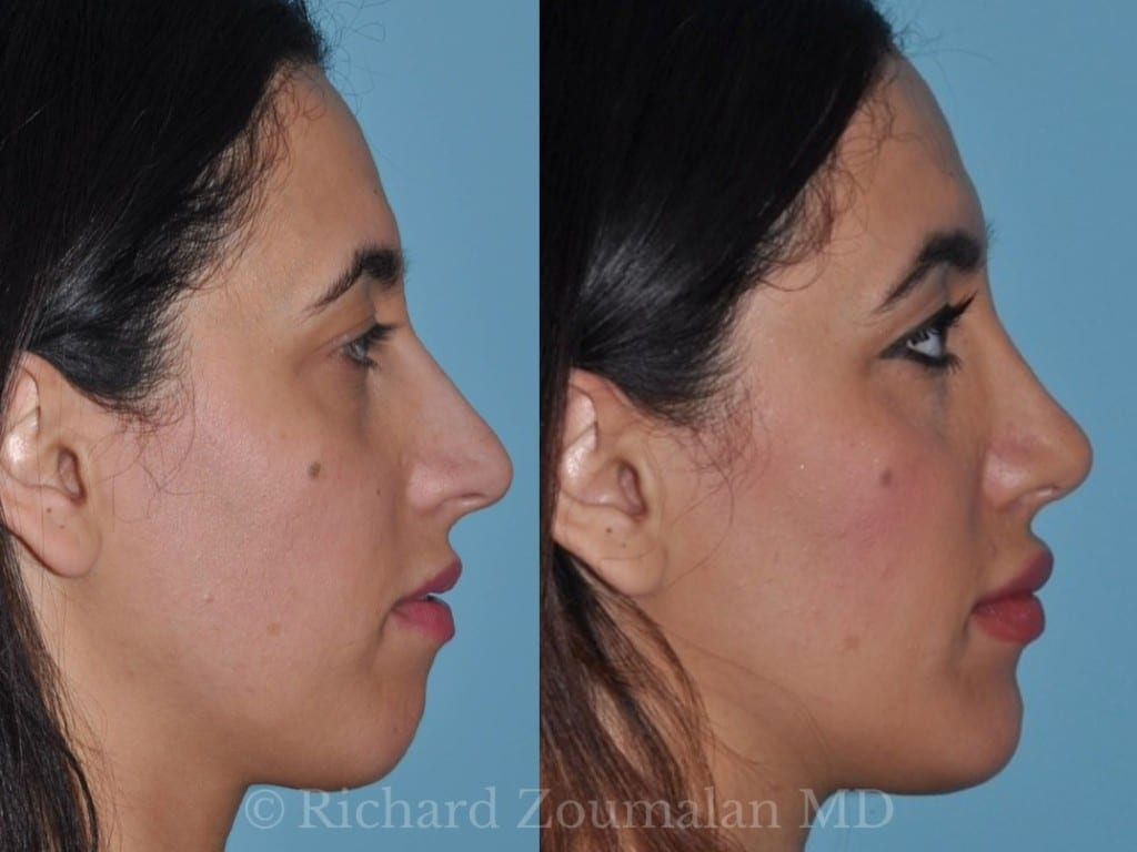 beverly-hills-female-rhinoplasty-02