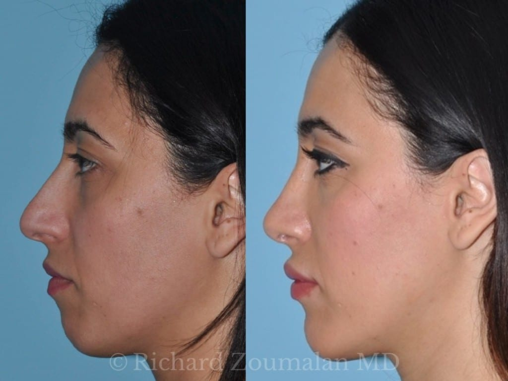 beverly-hills-female-rhinoplasty-03