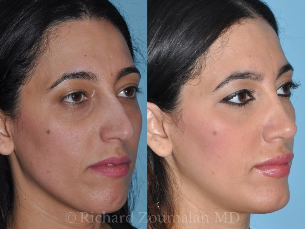 beverly-hills-female-rhinoplasty-04