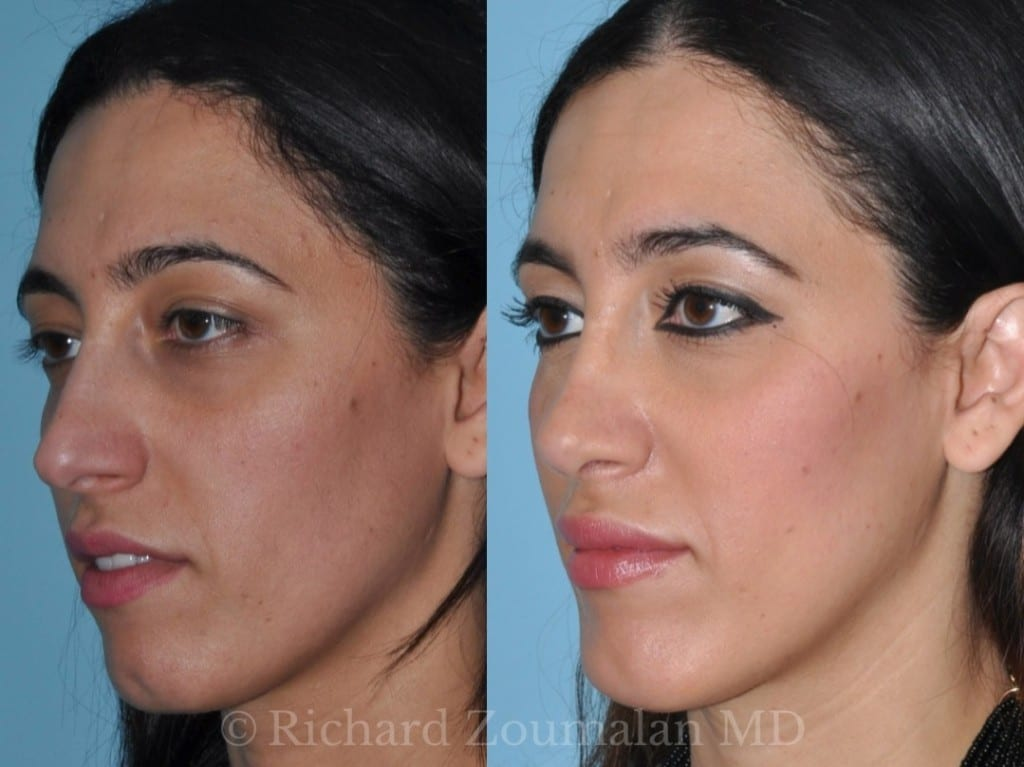 beverly-hills-female-rhinoplasty-05
