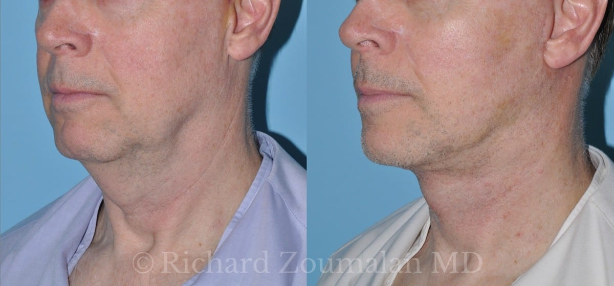 beverly-hills-male-facelift-chin-02