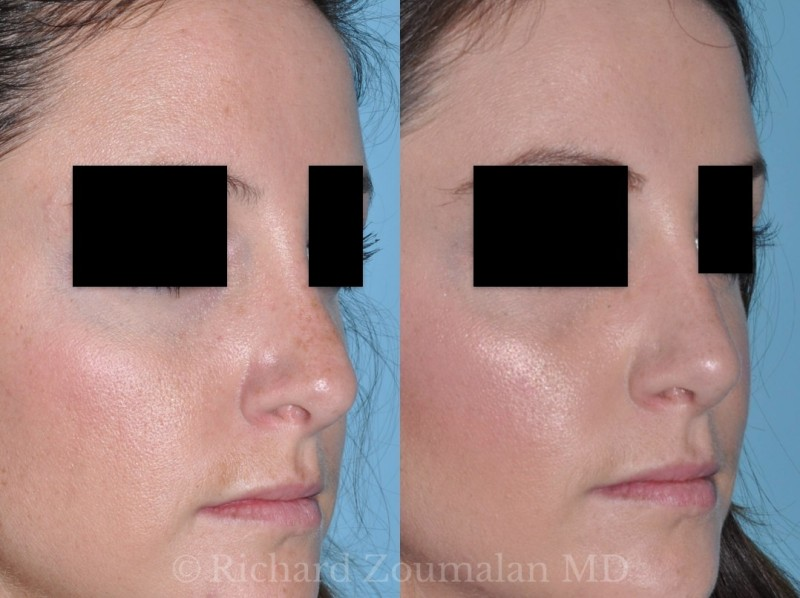 beverly-hills-revision-rhinoplasty