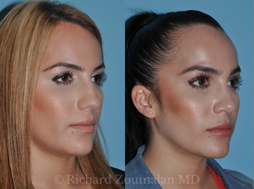 beverly-hills-rhinoplasty-03