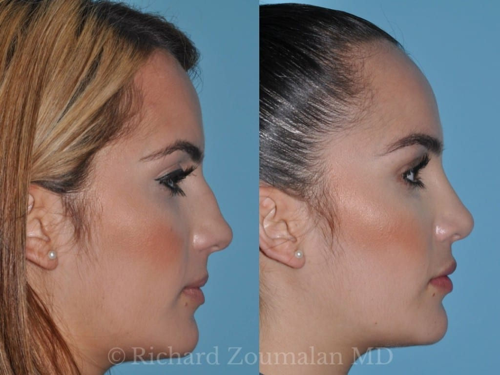 beverly-hills-rhinoplasty-05