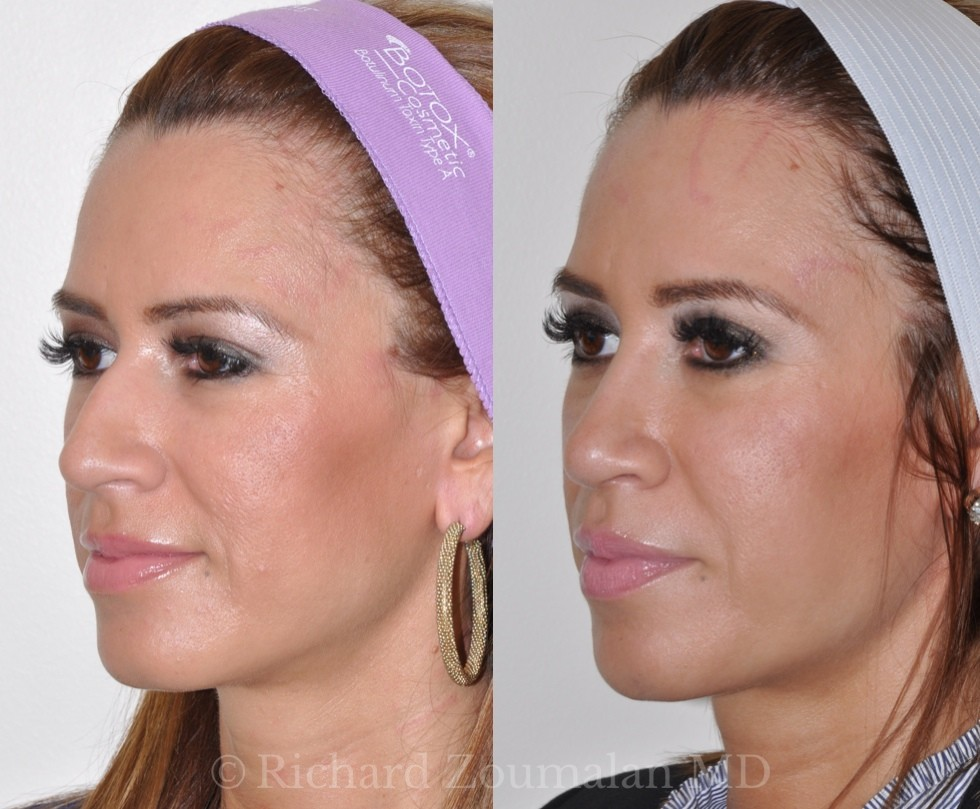beverly-hills-rhinoplasty-before-after-02