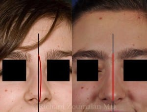 crooked-nose-female-before-after