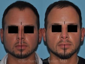 crooked-nose-male-before-after