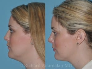 female-chin-liposuction-los-angeles-01