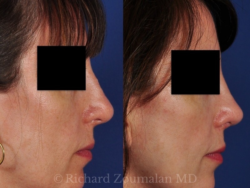 female-revision-rhinoplasty