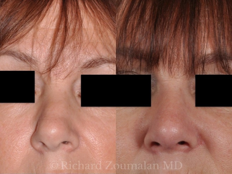 female-revision-rhinoplasty-before-after