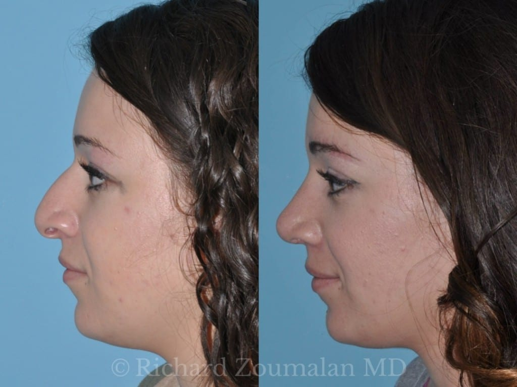 female-rhinoplasty-before-after-01