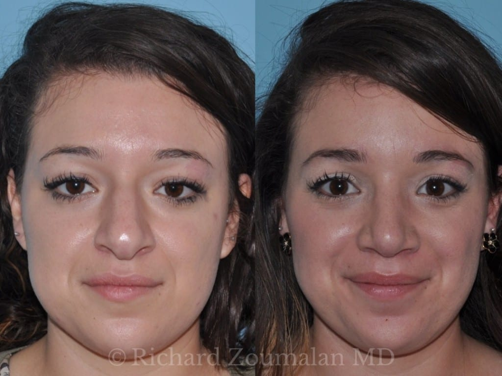 female-rhinoplasty-before-after-03