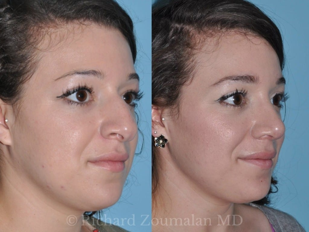female-rhinoplasty-before-after-05