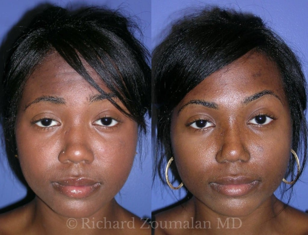 female-rhinoplasty-los-angeles-01