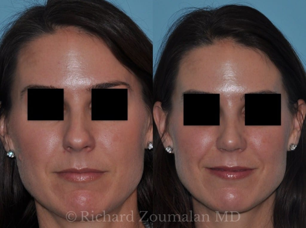 la-rhinoplasty-before-after-01