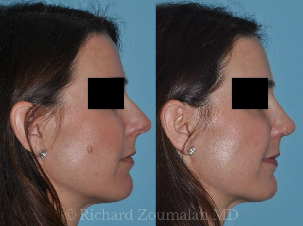 la-rhinoplasty-before-after-02