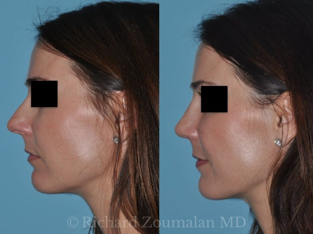 la-rhinoplasty-before-after-03
