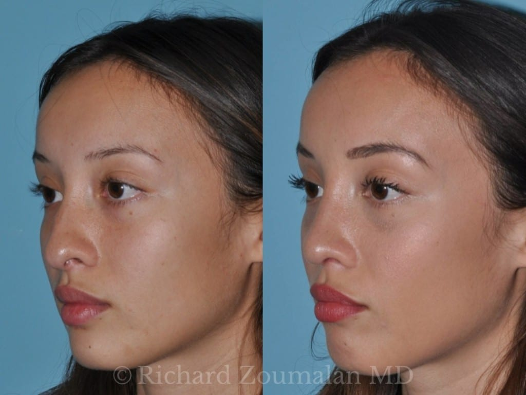 los-angeles-rhinoplasty-02