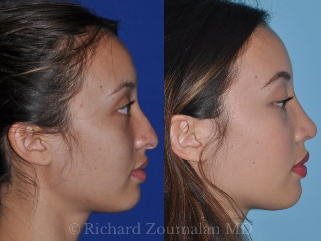 los-angeles-rhinoplasty-03