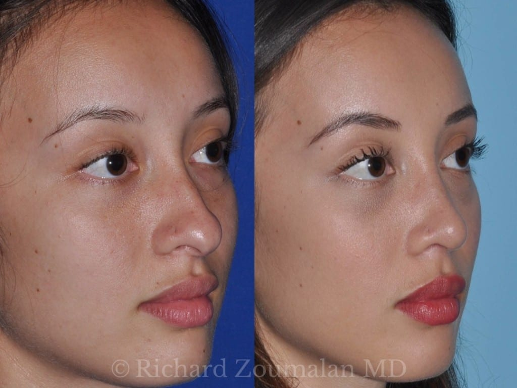 los-angeles-rhinoplasty-04