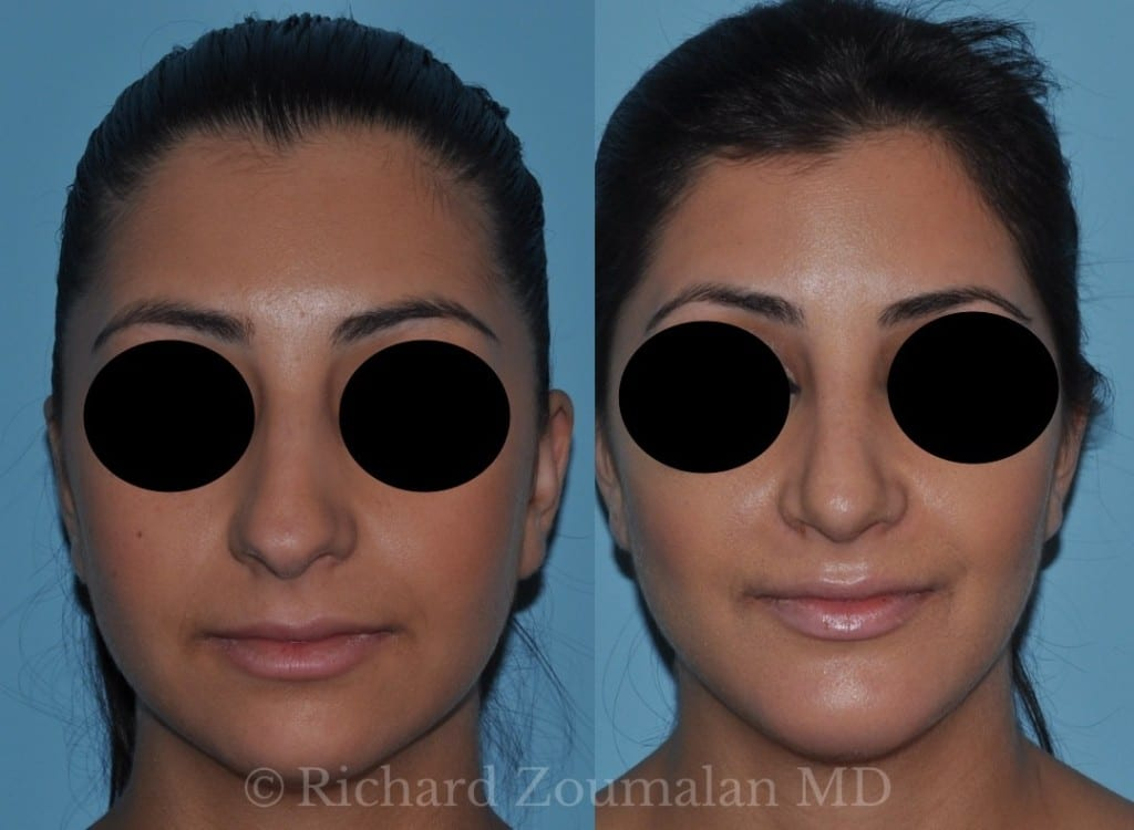 los-angeles-rhinoplasty-before-after-01