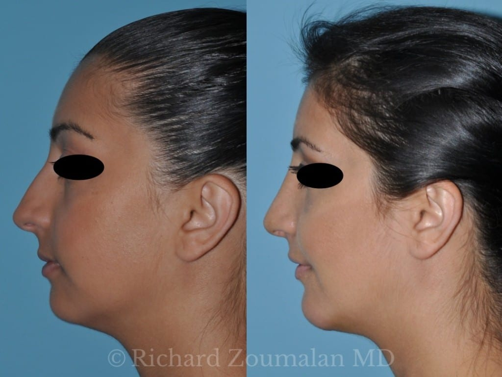 los-angeles-rhinoplasty-before-after-02