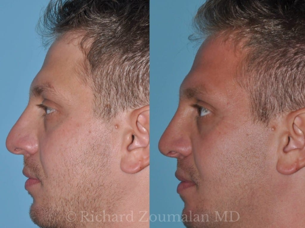 male-rhinoplasty-01