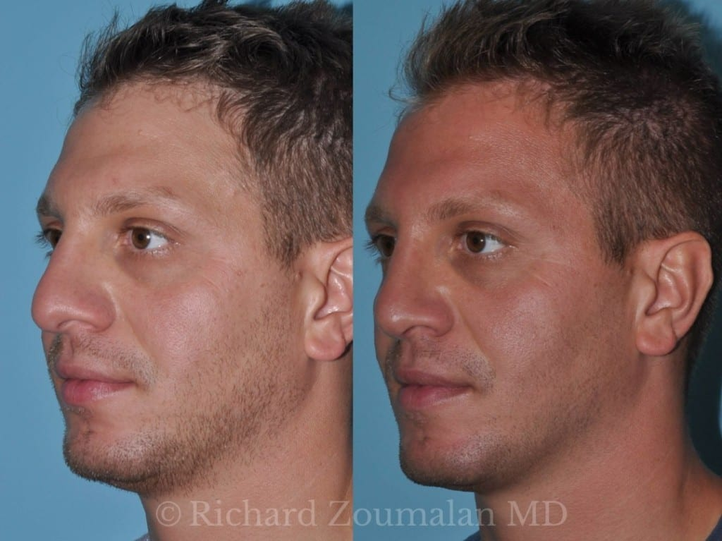 male-rhinoplasty-02