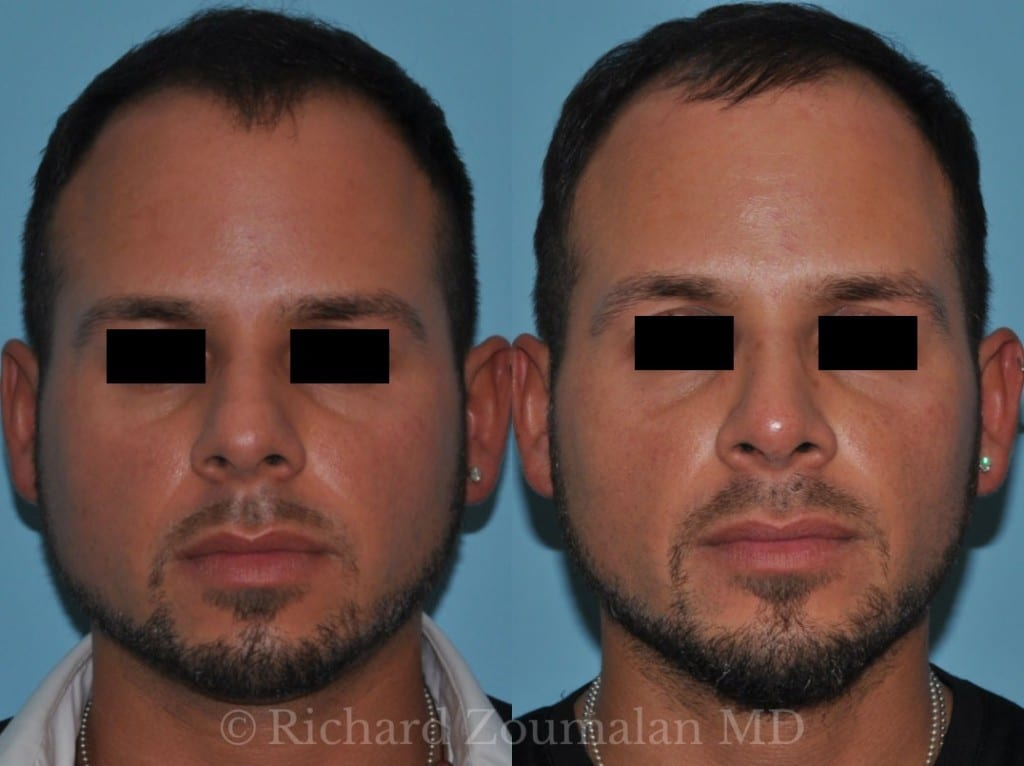 male-rhinoplasty-beverly-hills-01x