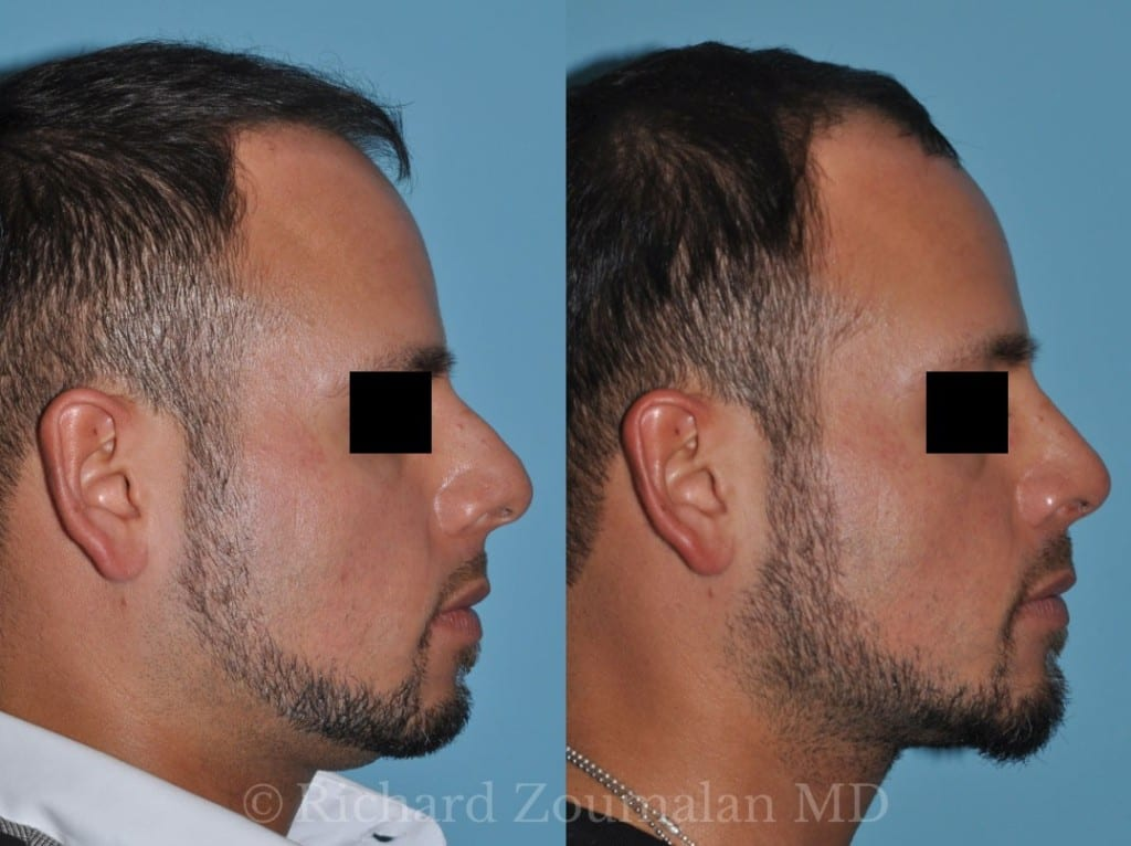 male-rhinoplasty-beverly-hills-02x