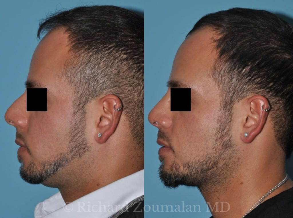 male-rhinoplasty-beverly-hills-03x