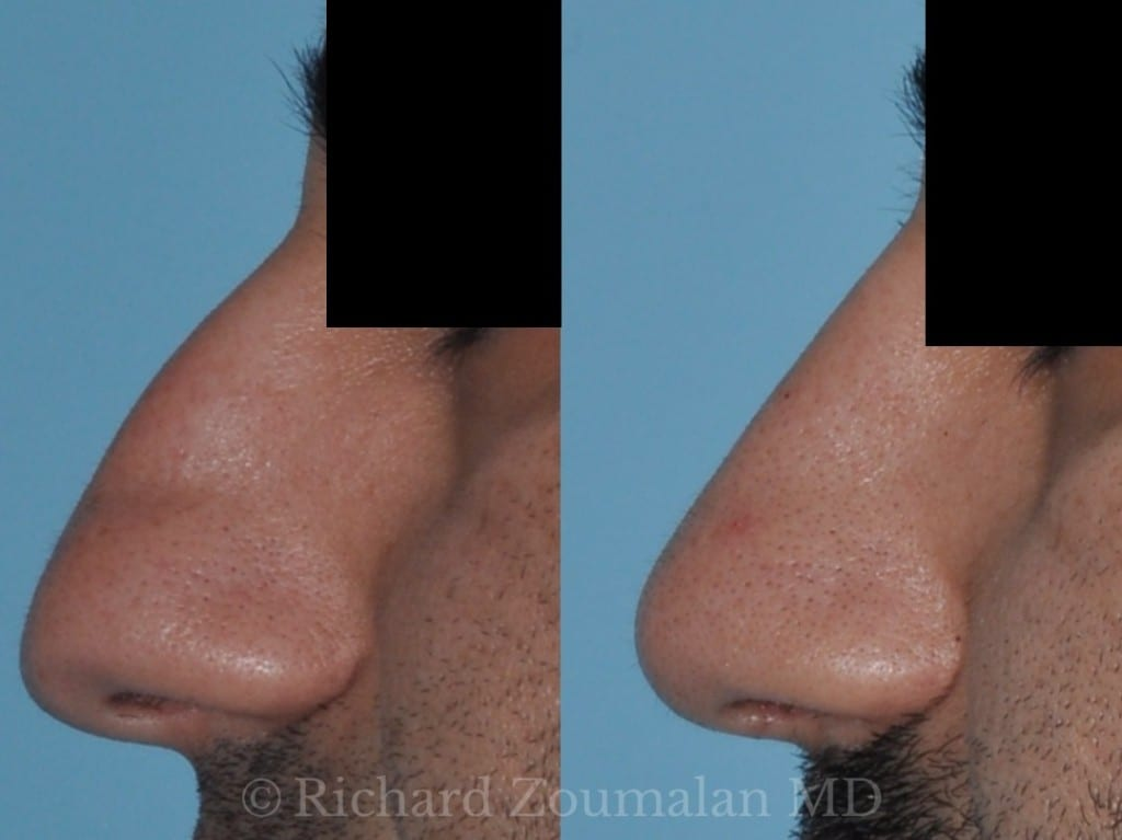 male-rhinoplasty-closeup
