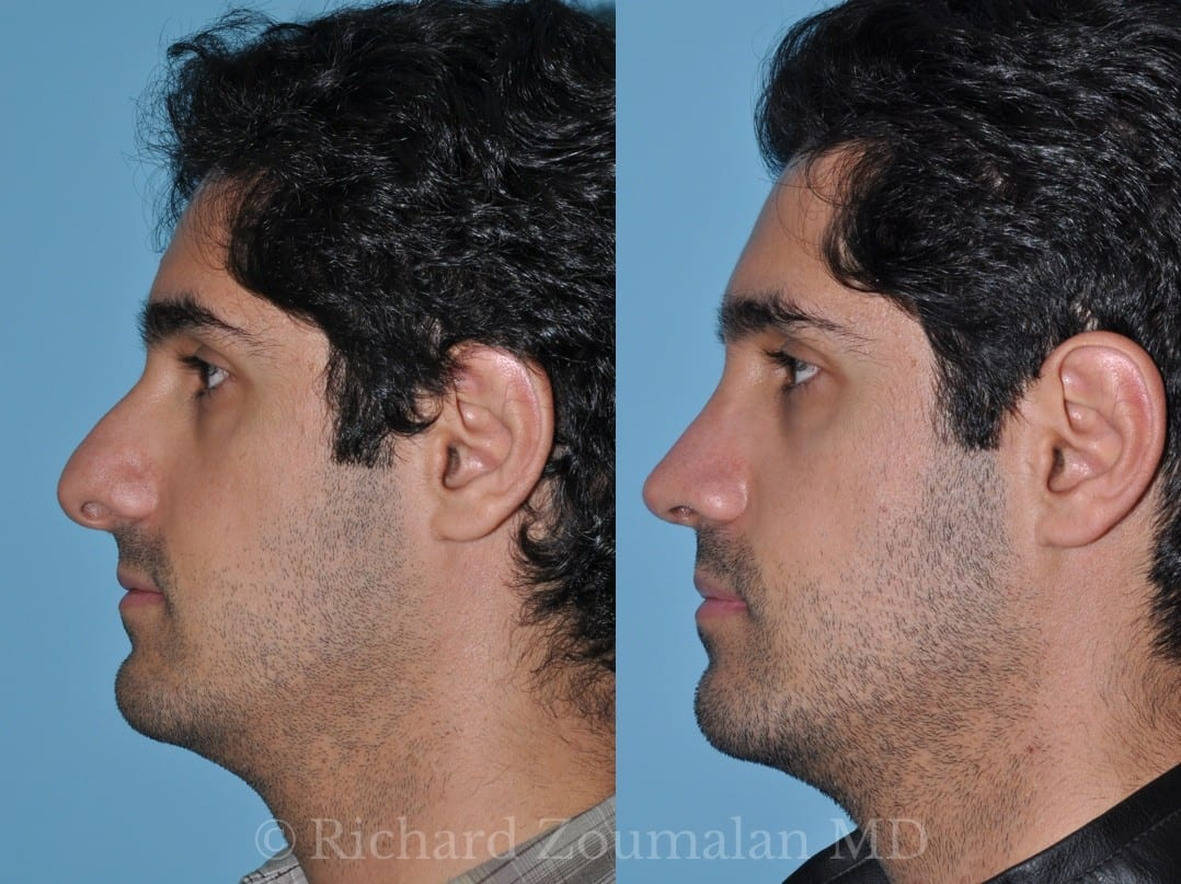 male-rhinoplasty-los-angeles-01