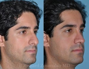 male-rhinoplasty-los-angeles-02