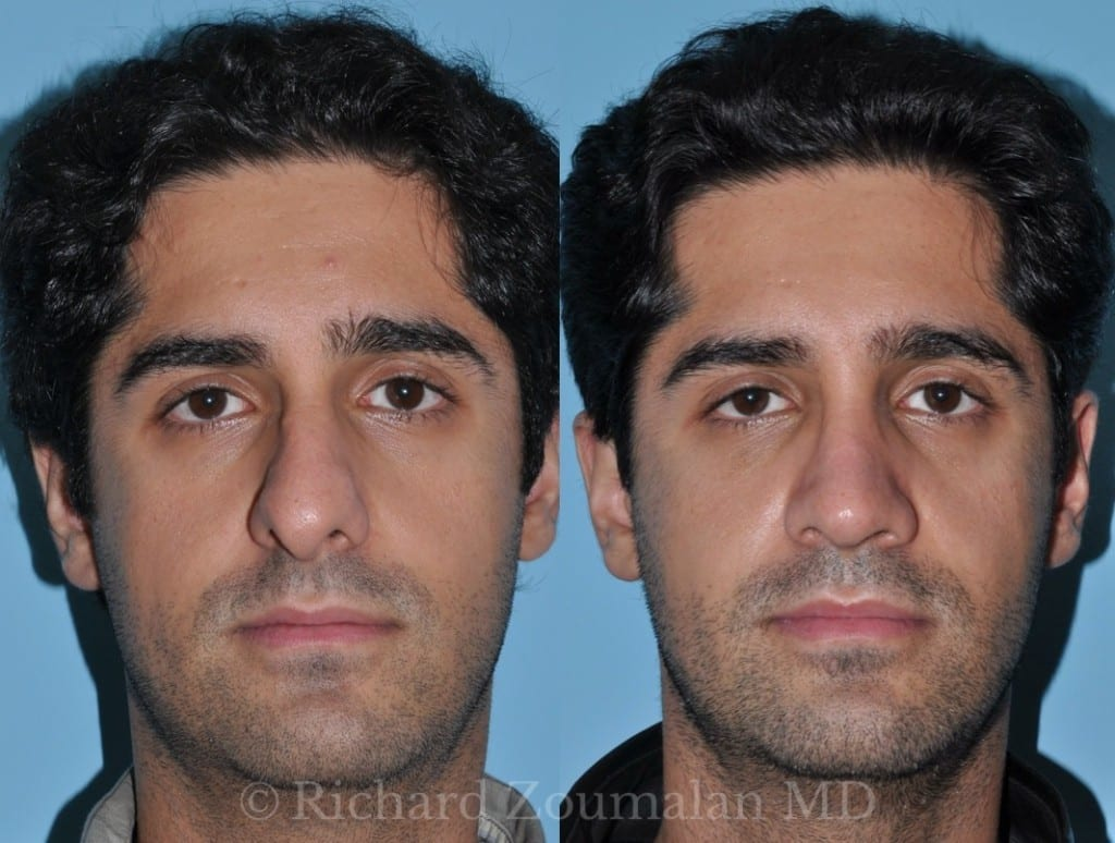 male-rhinoplasty-los-angeles-03