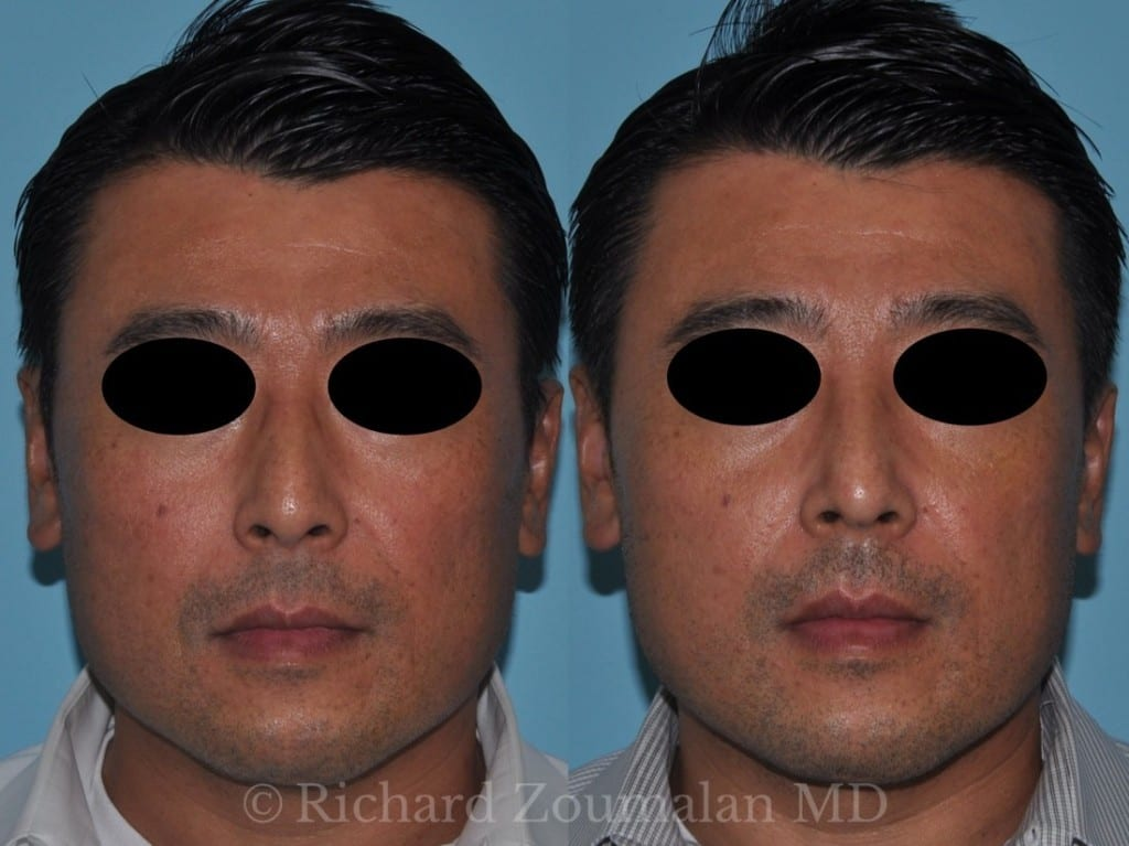 male-rhinoplasty-results-01