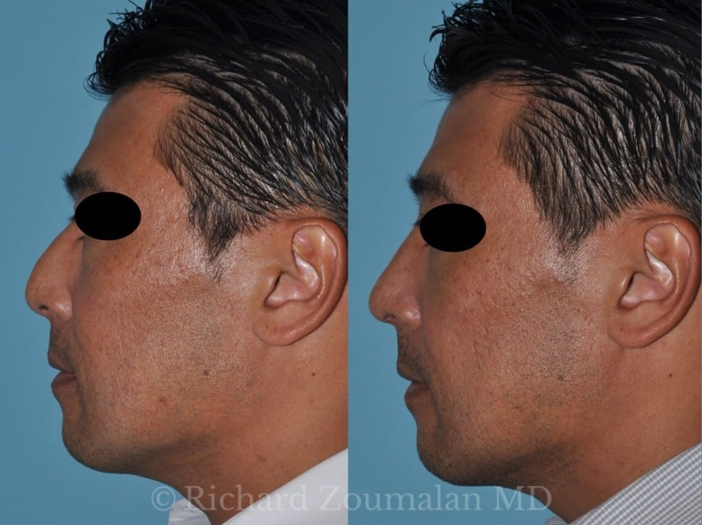 male-rhinoplasty-results-02