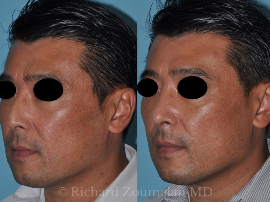 male-rhinoplasty-results-03