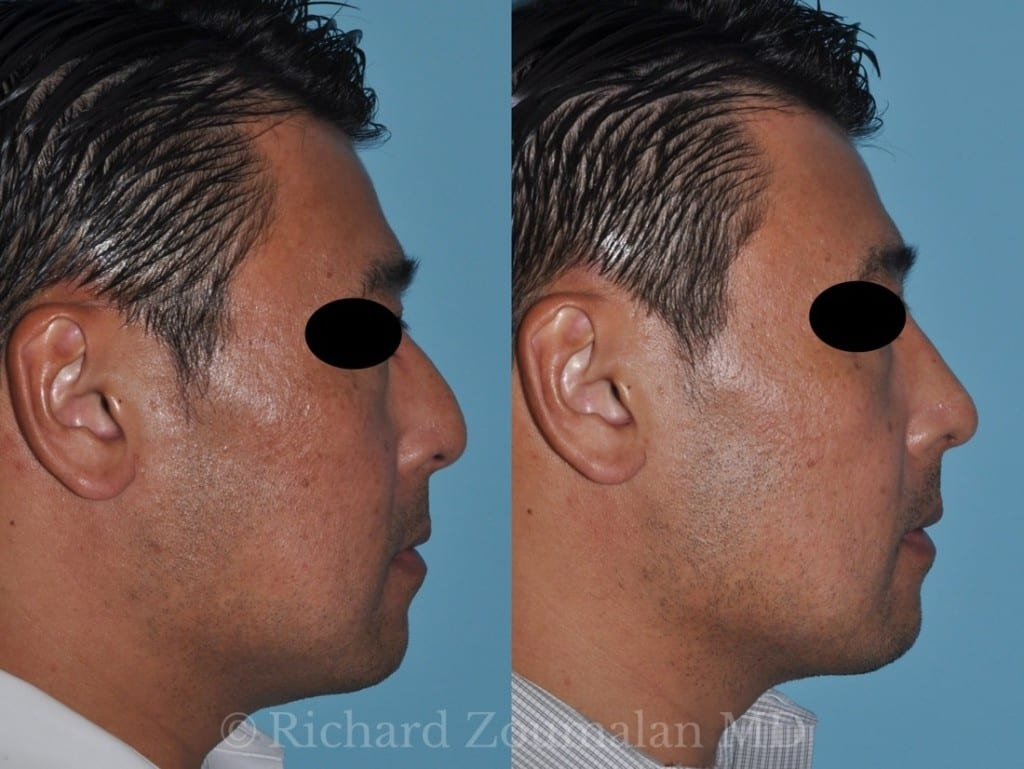male-rhinoplasty-results-04