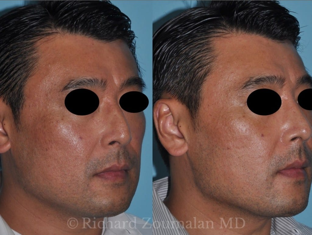 male-rhinoplasty-results-05