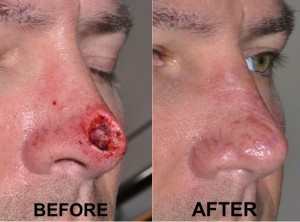 nasal-reconstruction-surgery-ex-4