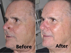 nasal-reconstruction-surgery-ex-5