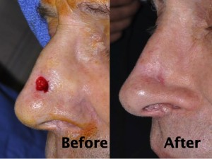 nasal-reconstruction-surgery-ex-7