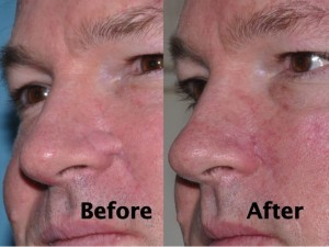 nasal-reconstruction-surgery-ex-8