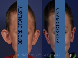otoplasty-child-labeled-300x224