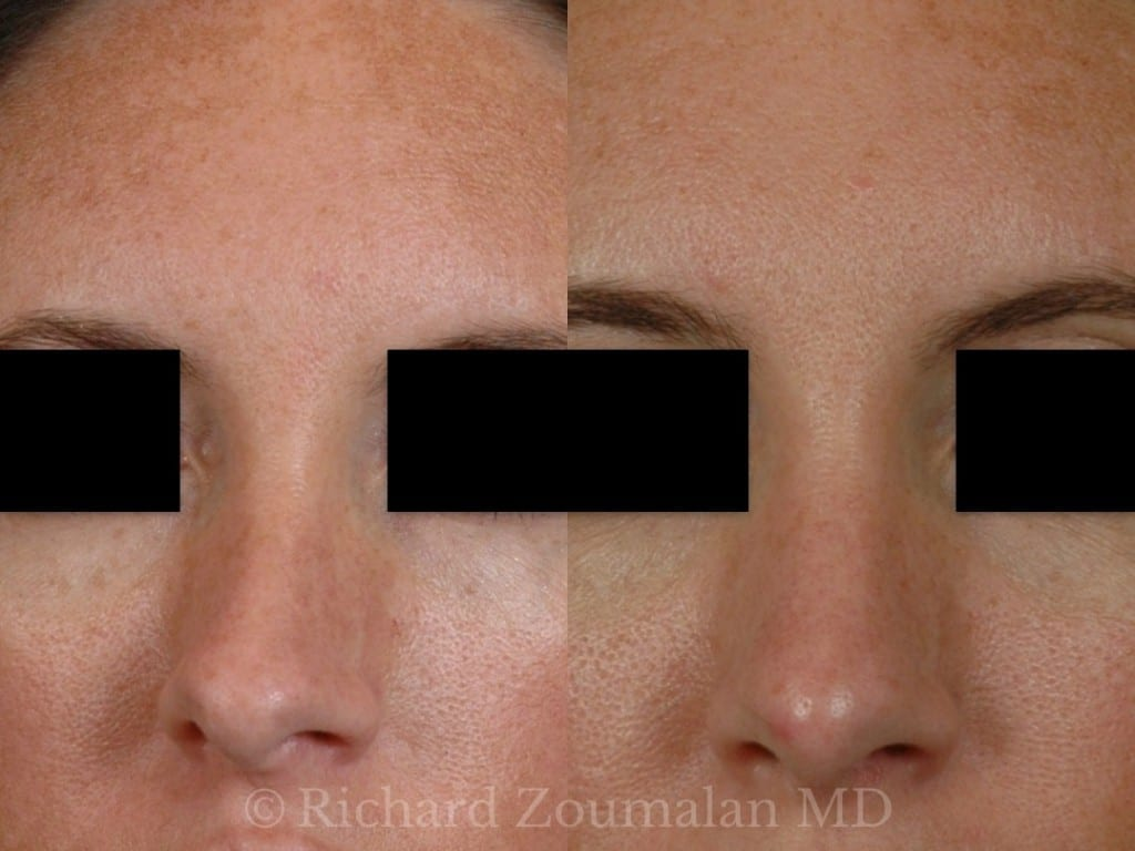 revision-rhinoplasty-results-closeup
