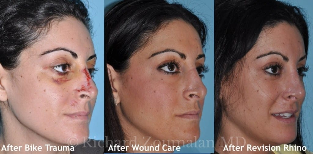 revision-rhinoplasty-after-accident-02-l