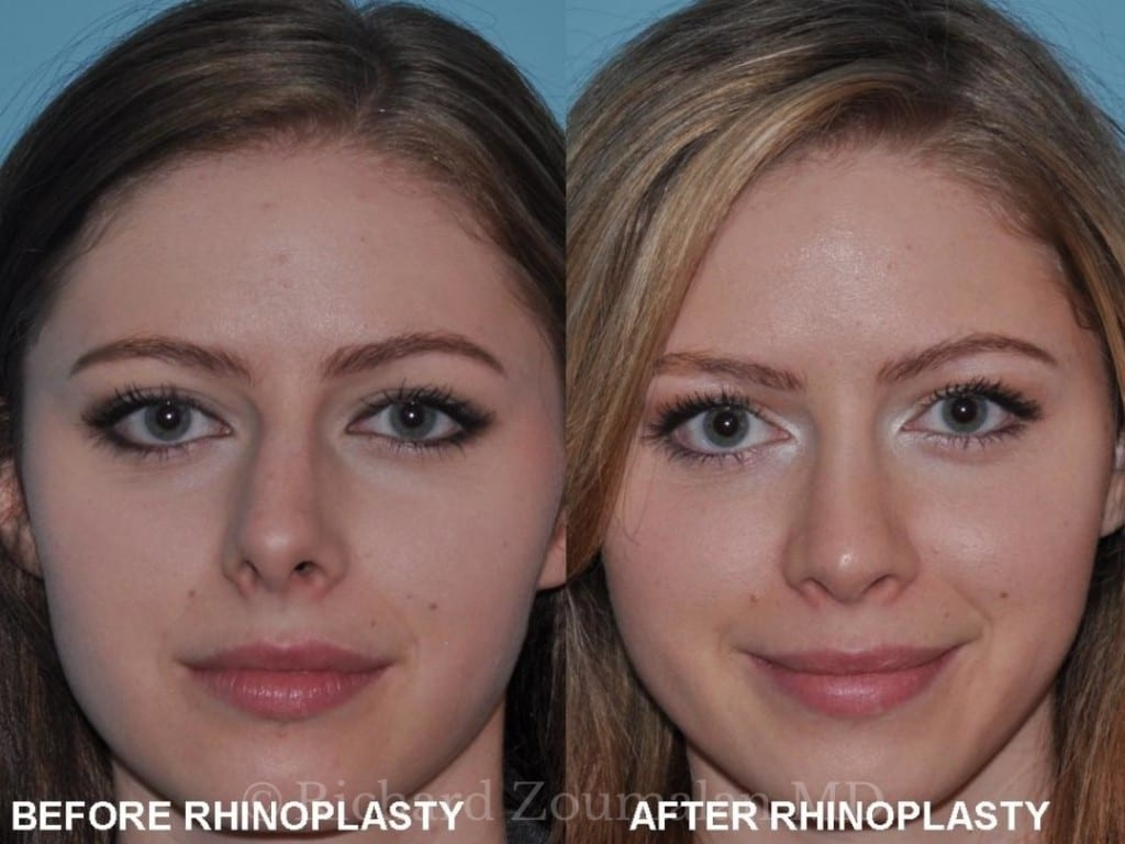 rhinoplasty-before-after-01