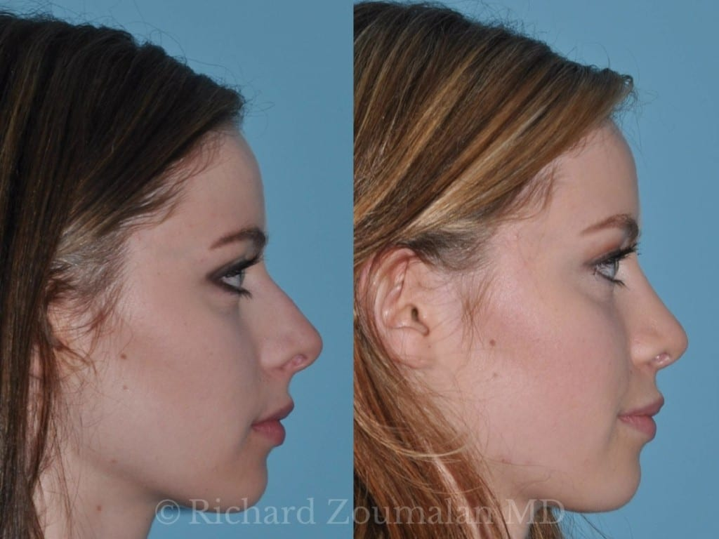 rhinoplasty-before-after-02
